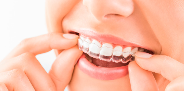 Clearline Aligners