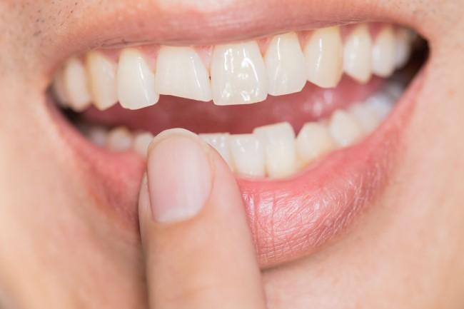 Broken tooth needs crown